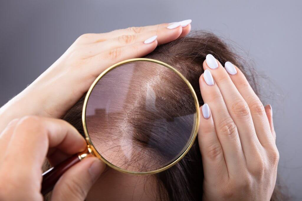 Hair transplantation for women without shaving in turkey